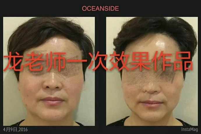 龙泉【徒手变脸】小V脸打造,一次收窄下巴1-3厘米!
