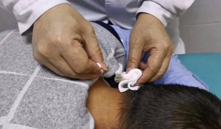 (内蒙古-8月15日)针刀+微创疗法治疗软组织疼痛临床带教培训班